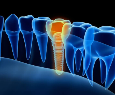 implantol (1) (1) (1)